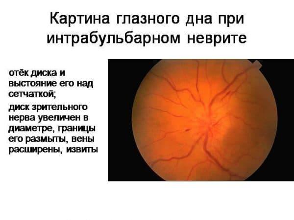 intrabulbarnyj-nevrit-zritelnogo-nerva