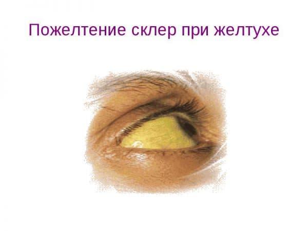 pozheltenie-sklery