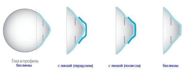 Принцип действия ортокератологической линзы