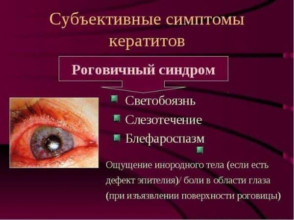 simptomy-keratita