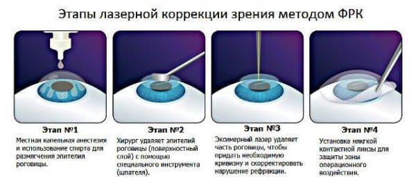 etapy-provedeniya-frk