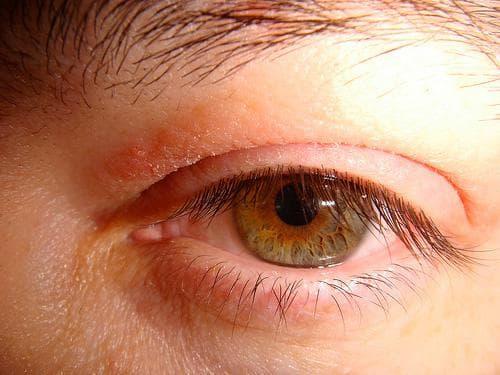 Аллергия на веках глаз: причины и лечение белезни
