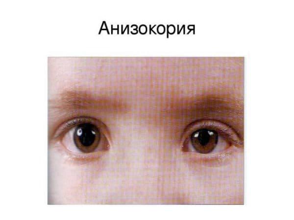 anizokoriya