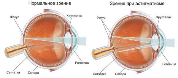 astigmatizm