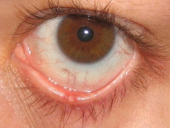 Чем лечить воспаление верхнего века глаза