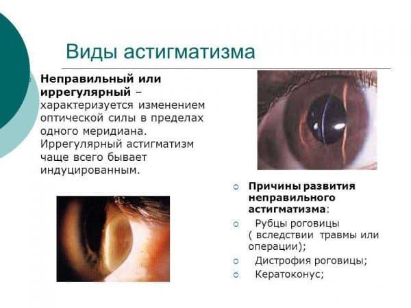 vidy-astigmatizma