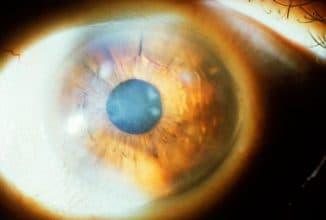 дистрофия роговицы глаза лечение