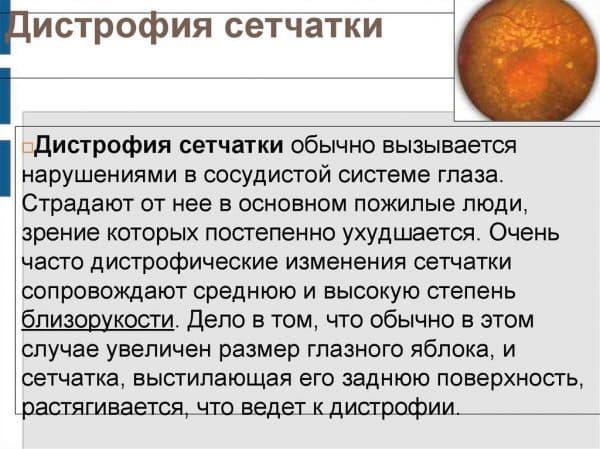distrofiya-setchatki
