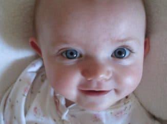зрачки разного размера у ребенка