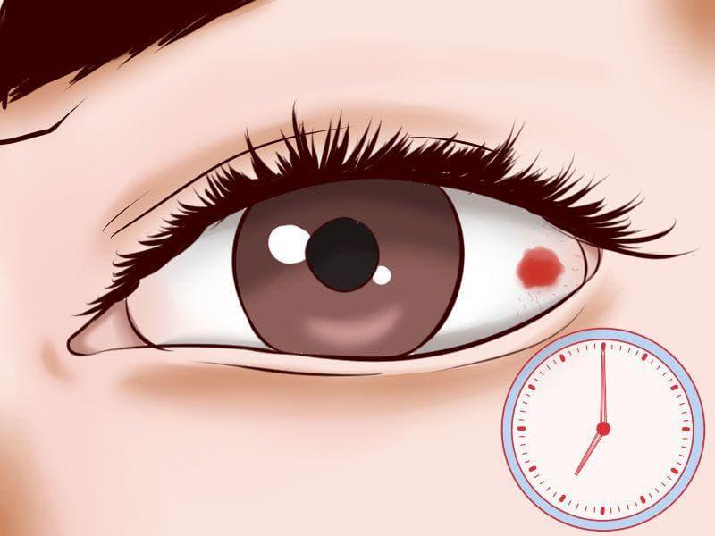 Как быстро снять покраснение глаз в домашних условиях. Как убрать красноту глаз дома