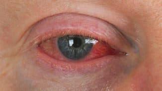 конъюнктивит глаз лечение