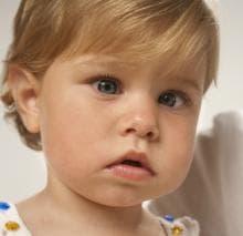 косоглазие у детей причины и лечение