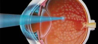 лазерная коагуляция сетчатки глаза последствия