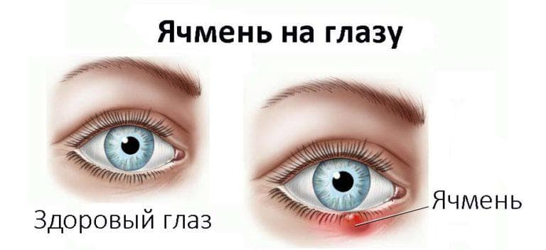 Средство от ячменя на глазу – лекарства и препараты, медикаменты и антибиотики для взрослых