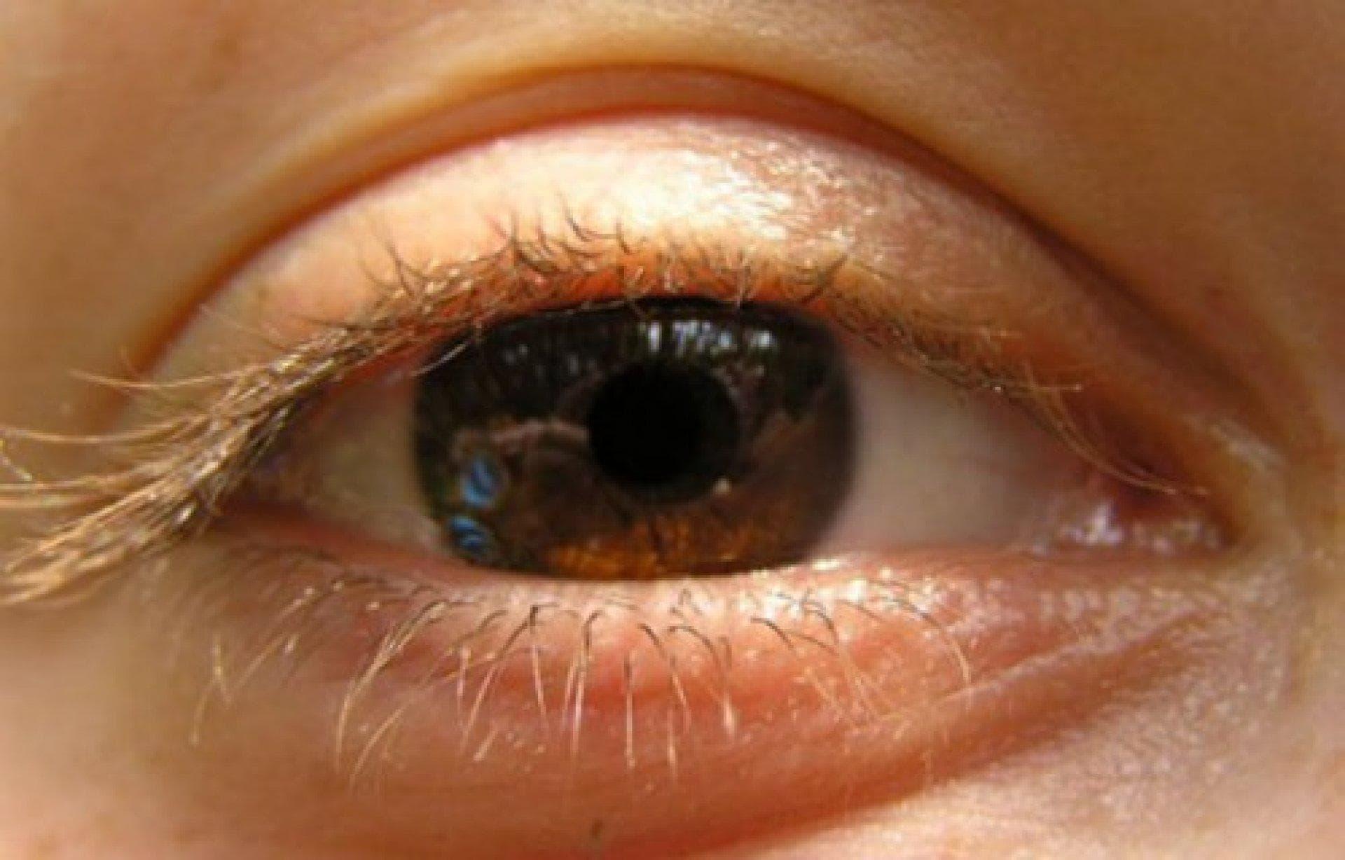 Непроизвольные колебательные движения глазных яблок называется