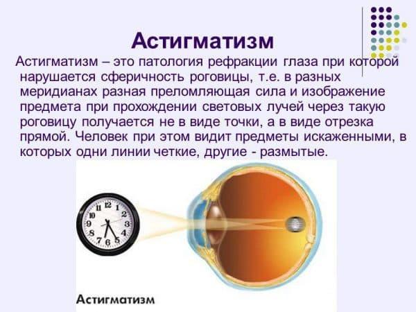 Гиперметропический астигматизм по мкб