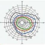 определение поля зрения