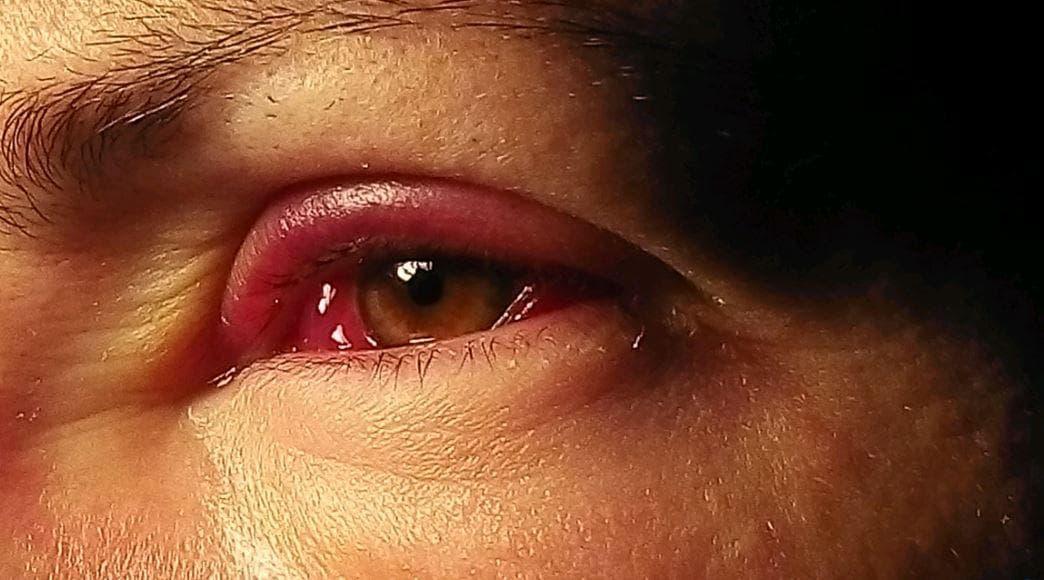 Отекают верхние веки глаз: причины и как бороться, рецепты, видео