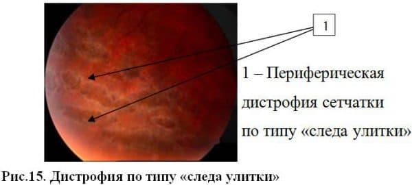perifericheskaya-distrofiya-po-tipu-sleda-ulitki