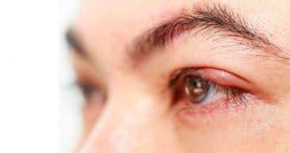 почему появляется ячмень на глазу