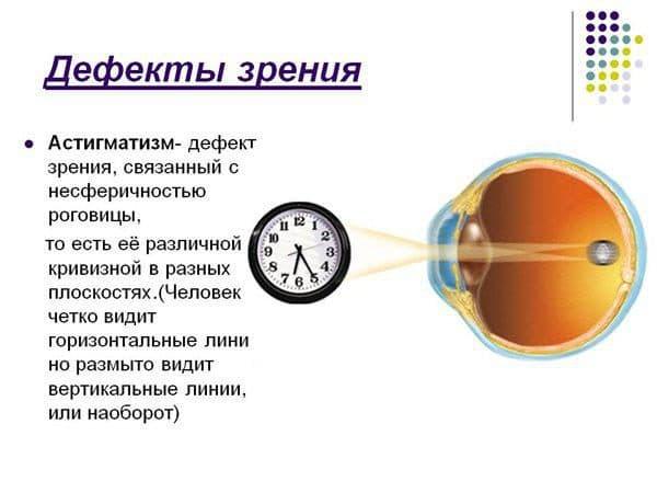 prichiny-vozniknoveniya-astigmatizma