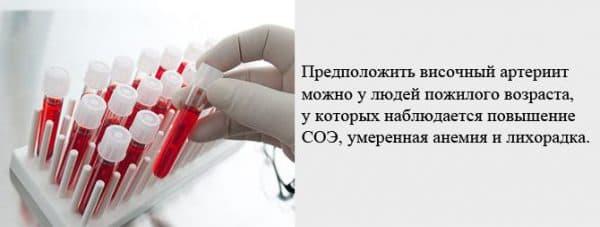 prichiny-vozniknoveniya-visochnogo-arteriita