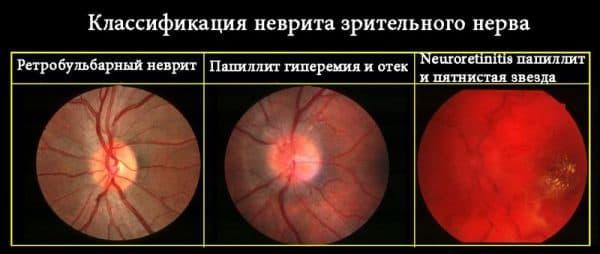retrobulbarnyj-nevrit-zritelnogo-nerva