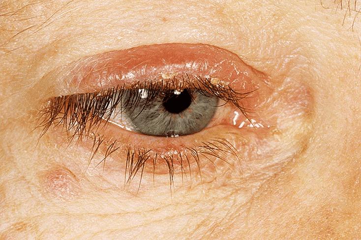 Лечение демодекоза век глаза