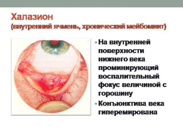 xronicheskij-mejbomit