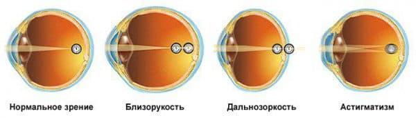 Заболевания, диагностируемые визометрией