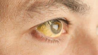 желтые глаза причины