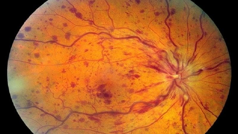 Тромбоз вен сетчатки