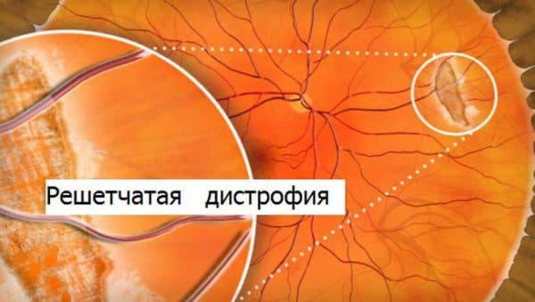 reshetchataya-distrofiya-setchatki