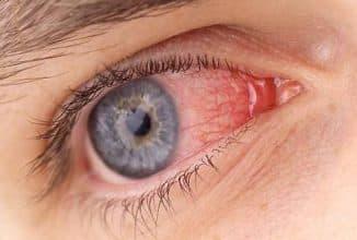от чего лопаются сосуды в глазах