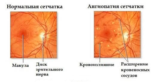 angiopatija-setchatki-simptomy