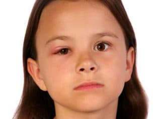 лечение ячменя на глазу у ребенка