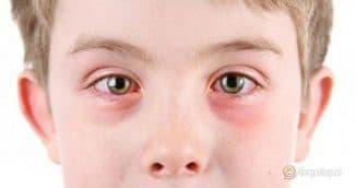 аллергия чешутся глаза