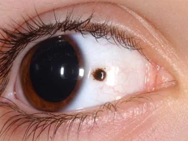 рак глаза методы лечения