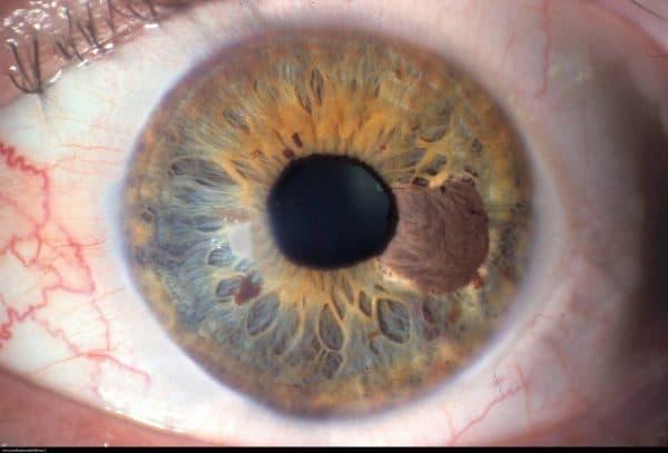 Онкология глаза: симптомы и методы лечения
