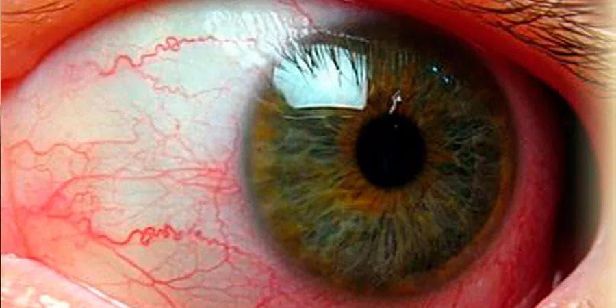 Симптомы и лечение иридоциклита