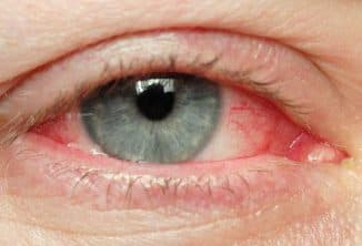 istock_photo_of_eye_with_redness1349117200067