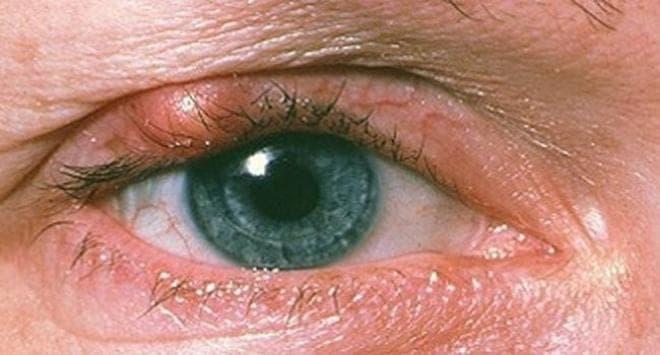 Удаление ячменя на глазу хирургическим путем у ребенка