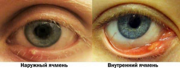 naruzhnyj-vnutrennij-yachmen-768x290