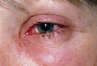 pink-eye-conjunctivitis-s6-conjunctivitis-eye-irritation