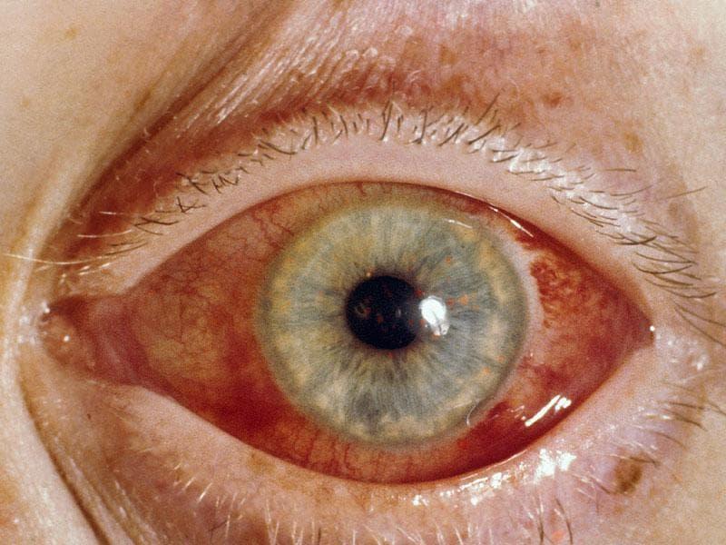 Глаукома. Острый приступ глаукомы. Клиника ( признаки ) приступа глаукомы. Дифференциальная диагностика приступа глаукомы. Неотложная ( первая ) помощь при приступе глаукомы.