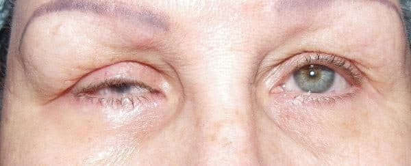 """Микрофтальм"""" - это уменьшение в размерах глазного яблока. Как правило, сочетающееся с пороками развития глаза"""