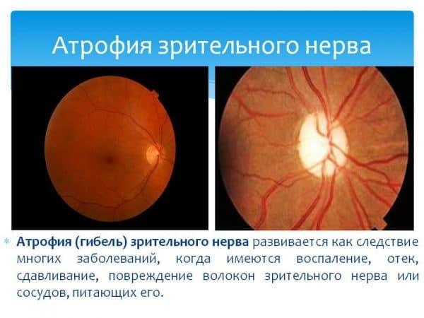 Атрофия зрительного нерва причины патологии и лечение