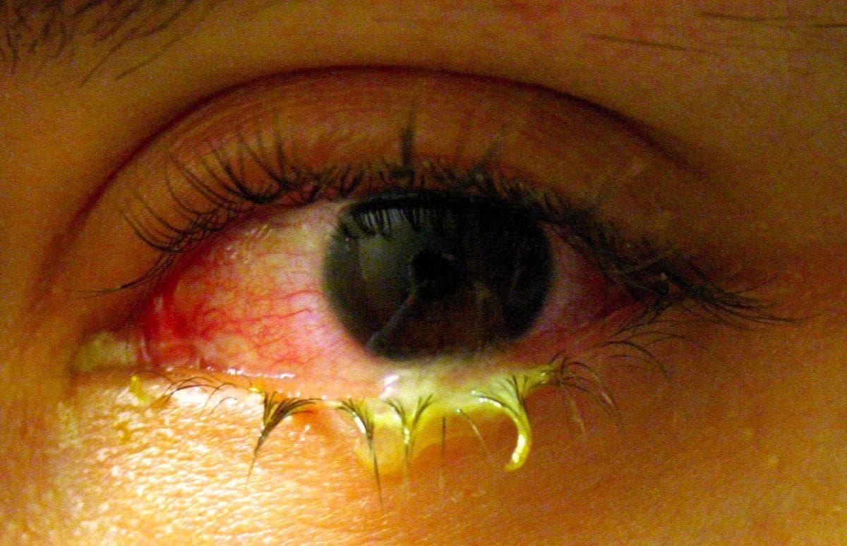 Что делать когда гноятся глаза у взрослого