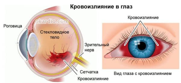 Кровоизлияние глазного дна причины