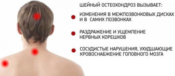 шейного остеохондроза